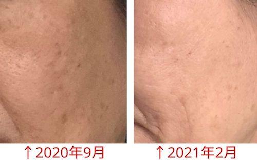 エトヴォス【40代~50代】口コミ〜肌効果はある?