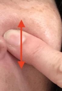 ほうれい線は消える?針美容液の効果は〜検証結果を公開【画像あり】