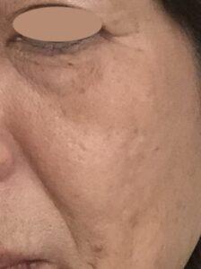 lujoニードルセラム【口コミ】効果はある?痛みは?