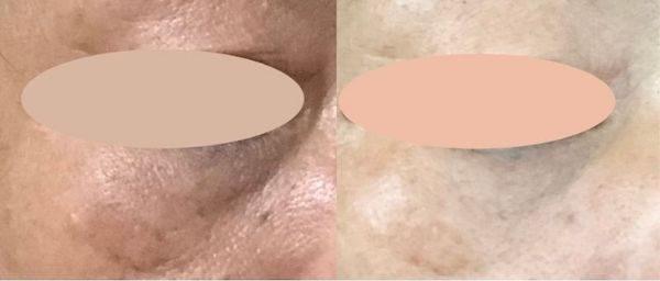 ハリ(針)美容液は痛い?効果はほんとにあるの?~ 50代主婦が実際に検証!