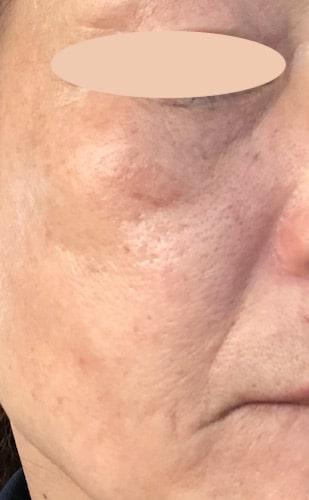 プラチナVCセラム【口コミ】シミやくすみに効果は?〜50代主婦の検証結果をレポ!
